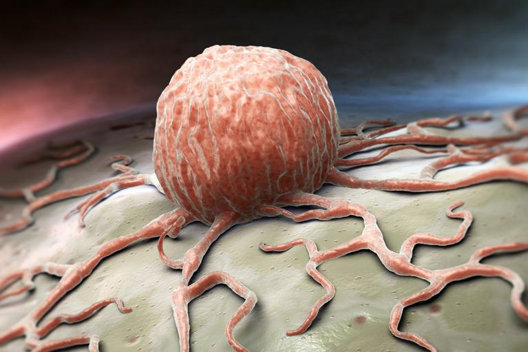 逆流性食道炎(IBS)
